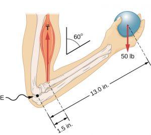 Elbow-Angle-300x268.jpg